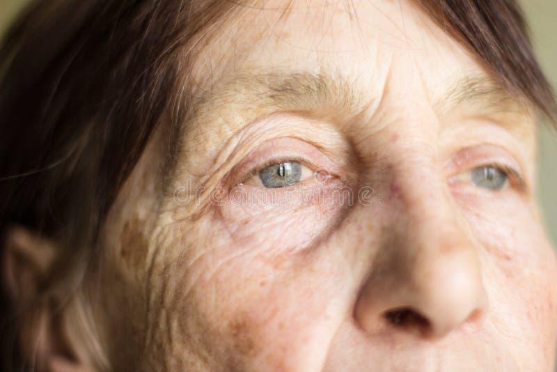 Yeux de photo avec les changements relatifs à l'âge plan rapproché de portrait d'un retraité âgé 77 photos libres de droits