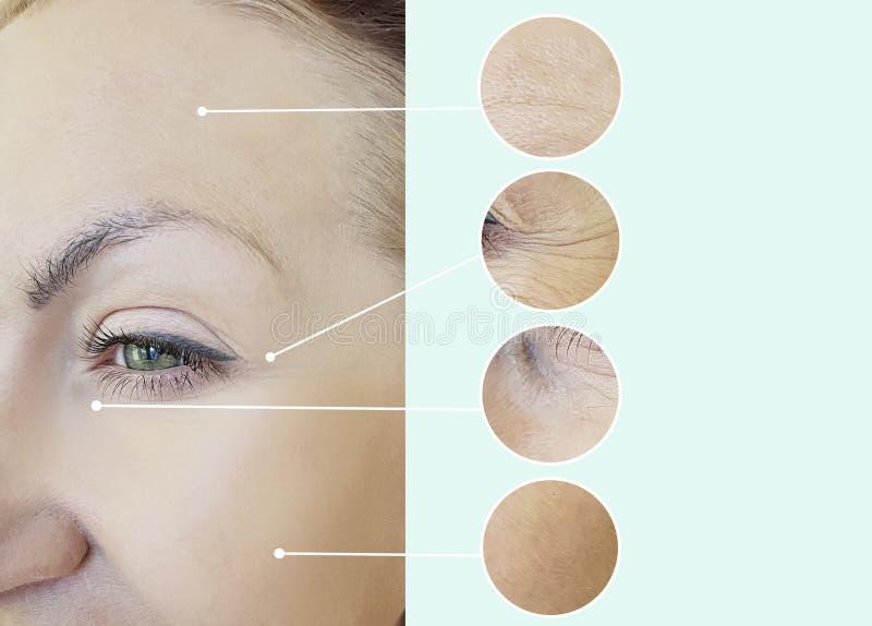 Yeux des rides d'une femme vieillissant le collage de retrait de résultat de régénération avant et après, procédures photographie stock
