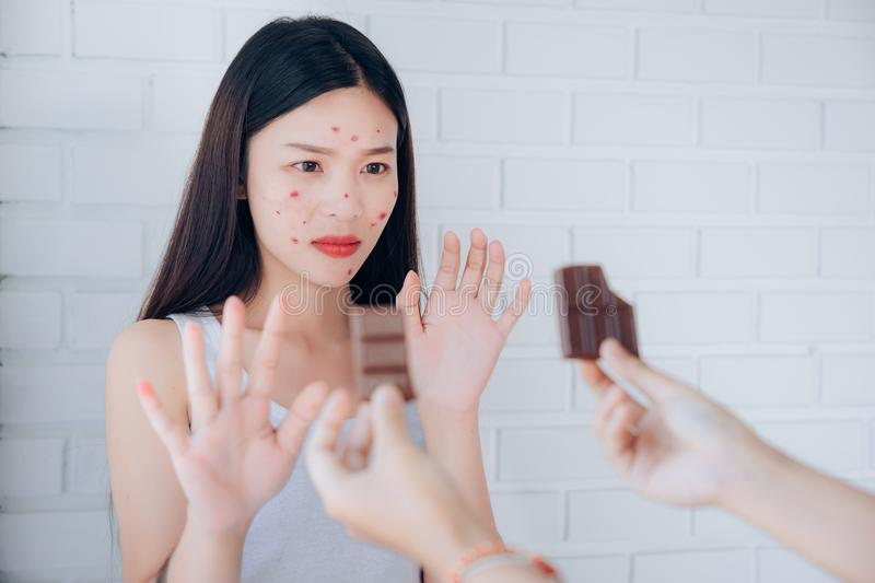 Young Asian woman acne problem face with chocolate bar refuses. Unhappy eating stock images