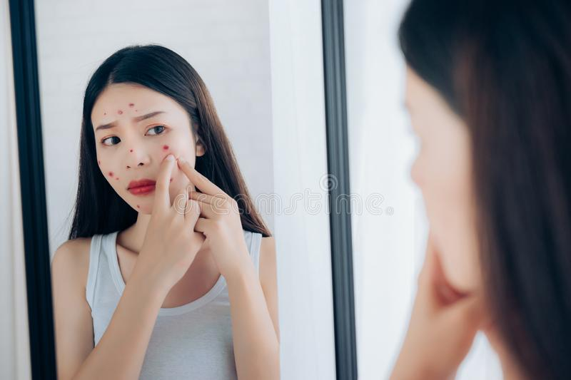 Young Asian woman squeeze acne problem face royalty free stock photo