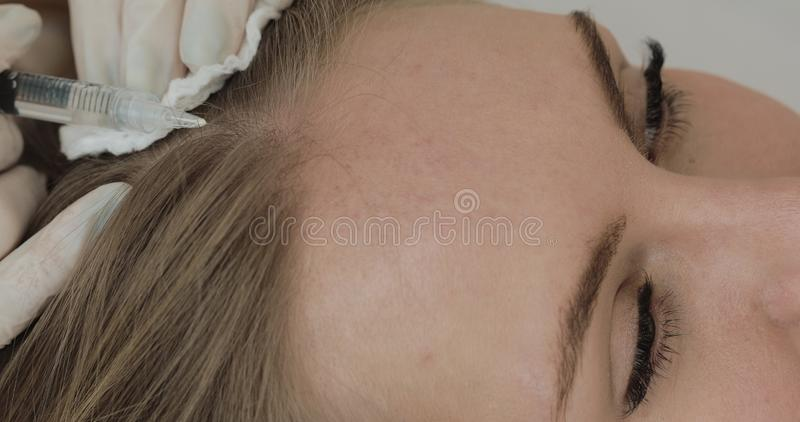 Young attractive woman receives mesotherapy for hair. Girl receives an injection in the head. Close up. royalty free stock photo