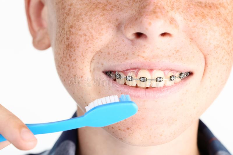 Boy with dental braces. Young boy with dental braces and toothbrushes royalty free stock photo