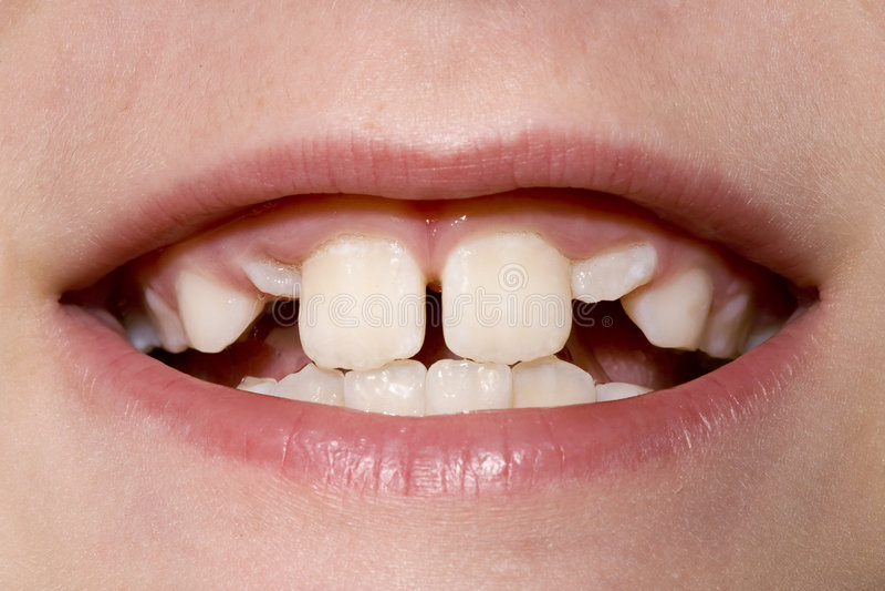Young Boy's Teeth Closeup royalty free stock photos