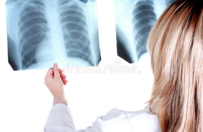 Young doctor looking to the x ray stock photo