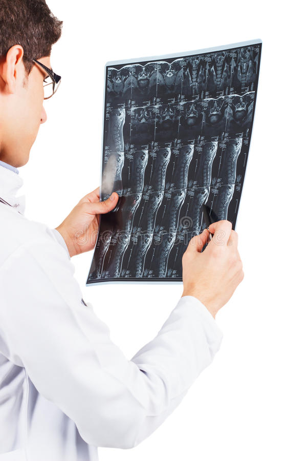 Young doctor with the x-ray in the hands stock image