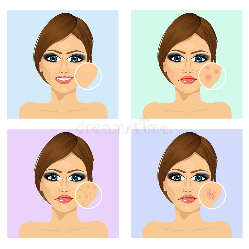 Young girl with a problem and clean skin of the face. Icon set for skincare Young girl with a problem and clean skin of the face royalty free illustration