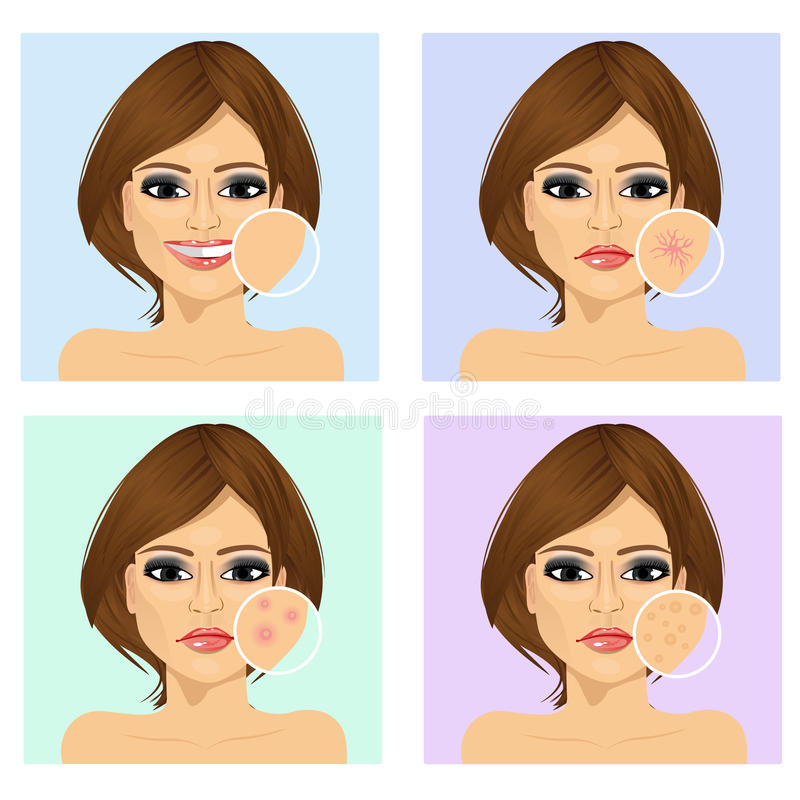 Young girl with a problem and clean skin of the face. Icon set for skincare infographi. Young latin woman with a problem and clean skin of the face vector illustration