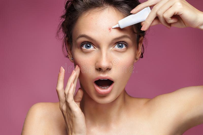 Young girl in shock of her acne. Photo of ugly girl with problem skin applying treatment cream on pink background. Skin care concept royalty free stock photo