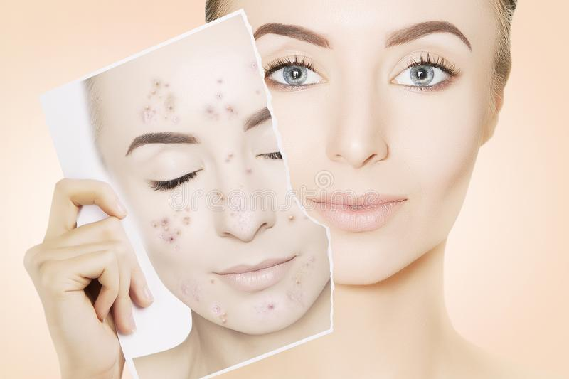 Young gorgeous woman with perfect skin releases her face from pi stock images