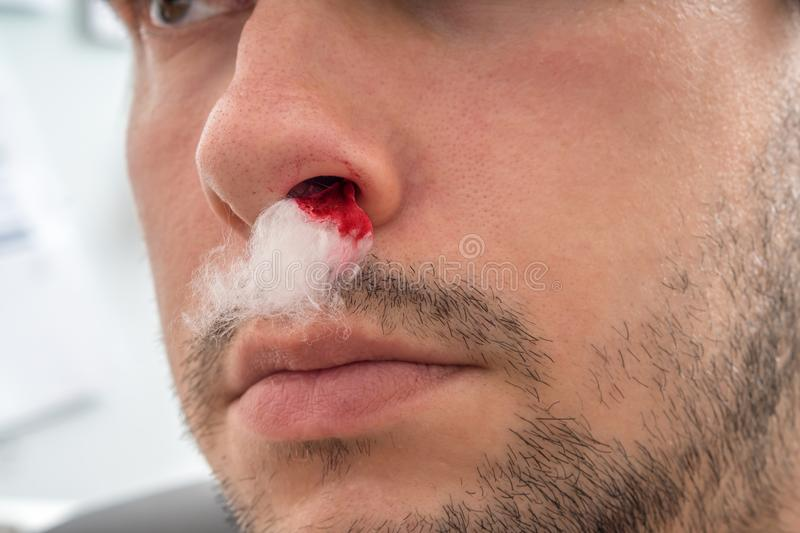 Young man with bleeding nose has cotton wool in nostril.  stock photo