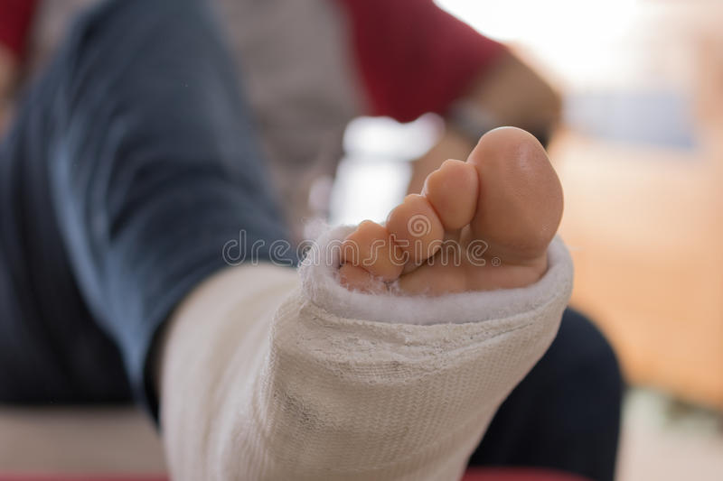 Young man with a broken ankle and a leg cast stock photo