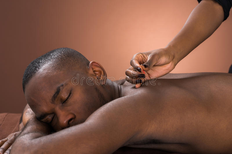 Young Man Getting Acupuncture Treatment stock photography