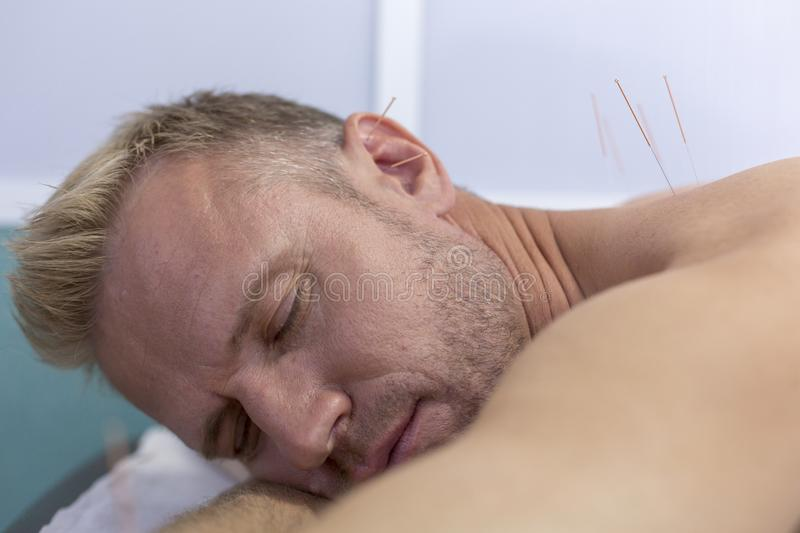 Young man getting acupuncture treatment, closeup shot of sleeping at spa-center royalty free stock photos