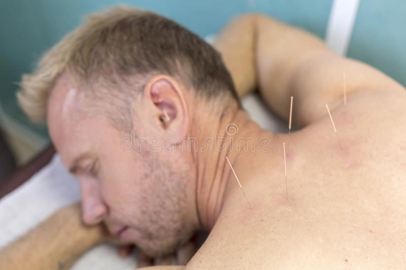 Young man getting well with his neck acupuncture treatment, closeup royalty free stock photo