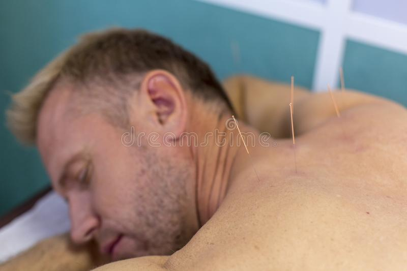 Young man getting acupuncture treatment neck, closeup royalty free stock image