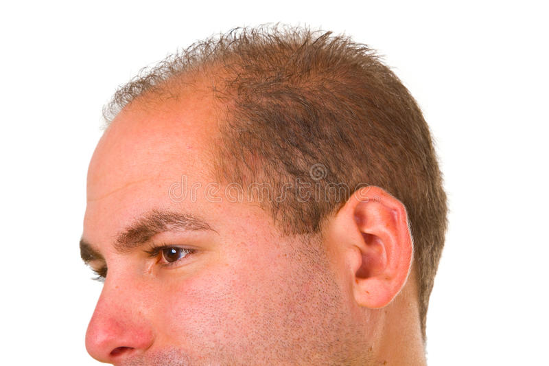 Download Young Man With Hair Problem Stock Image - Image: 23351551
