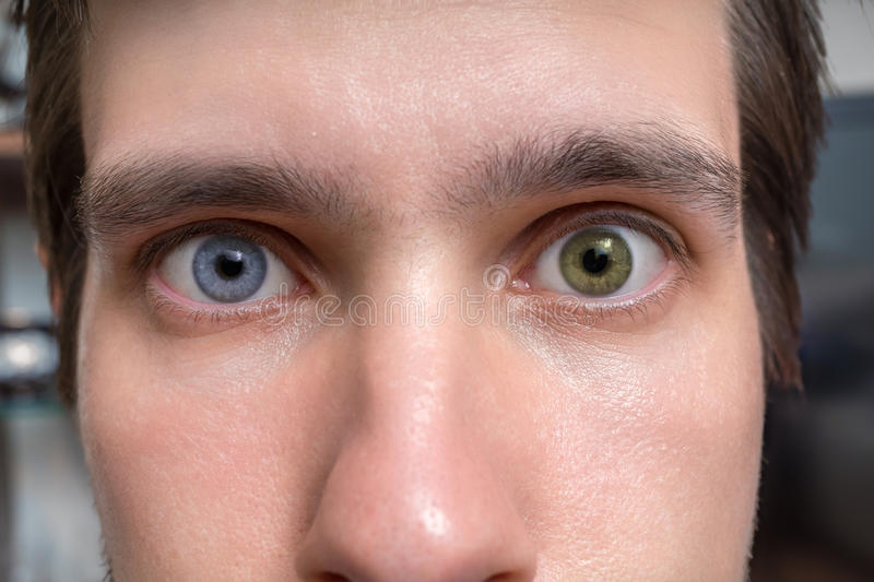 Young man with heterochromia - two different colored eyes. Contact lenses stock photo