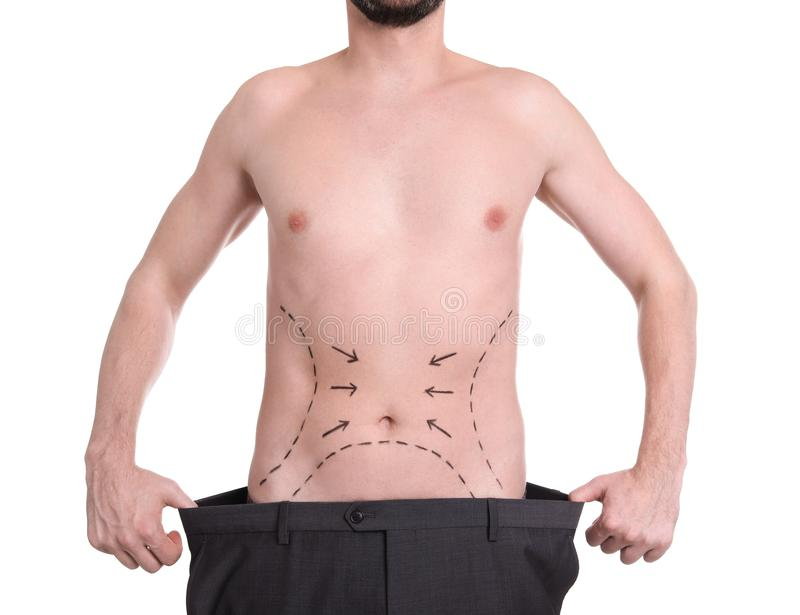 Man with marks on belly for cosmetic surgery operation on white background stock images