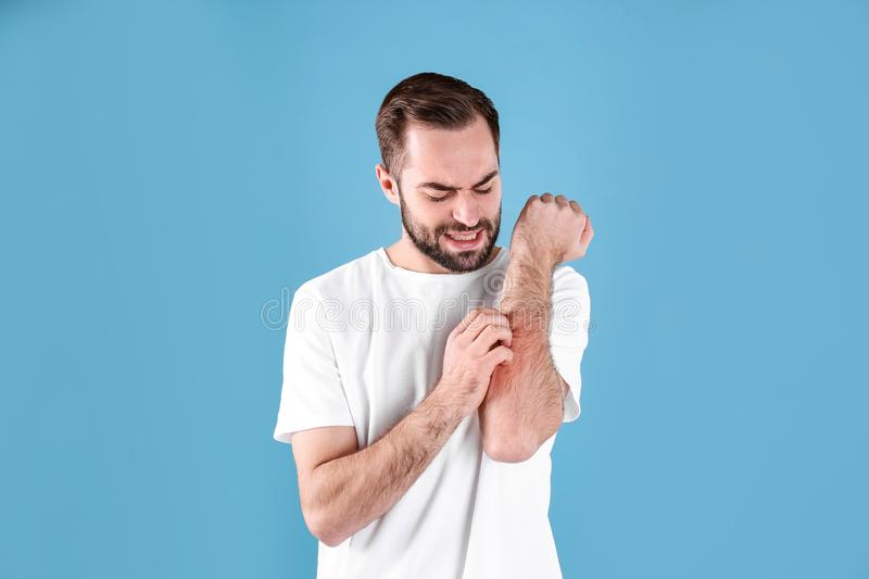 Young man scratching hand. Allergies symptoms. Young man scratching hand on color background. Allergies symptoms stock images