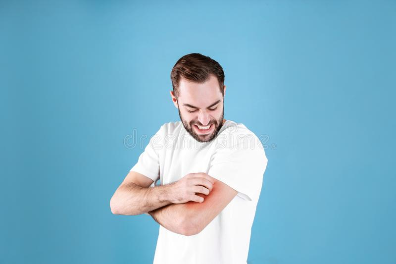 Young man scratching hand. Allergies symptoms. Young man scratching hand on color background. Allergies symptoms royalty free stock images