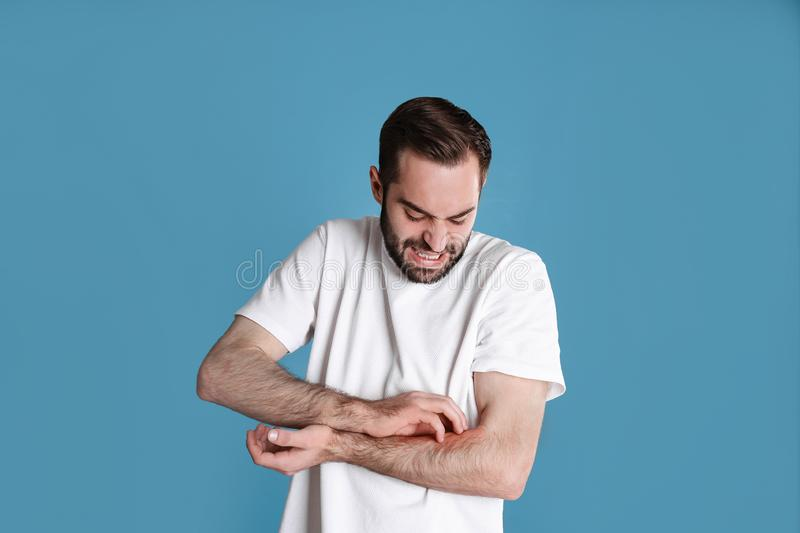 Young man scratching hand. Allergies symptoms. Young man scratching hand on color background. Allergies symptoms stock photography