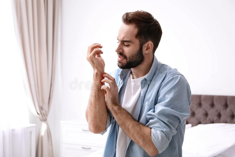 Young man scratching hand indoors. Allergies symptoms. Young man scratching hand indoors, space for text. Allergies symptoms royalty free stock image