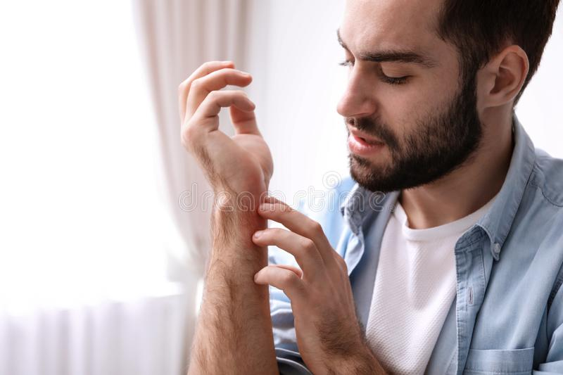 Young man scratching hand indoor. Allergies symptoms. Young man scratching hand indoors, space for text. Allergies symptoms royalty free stock images