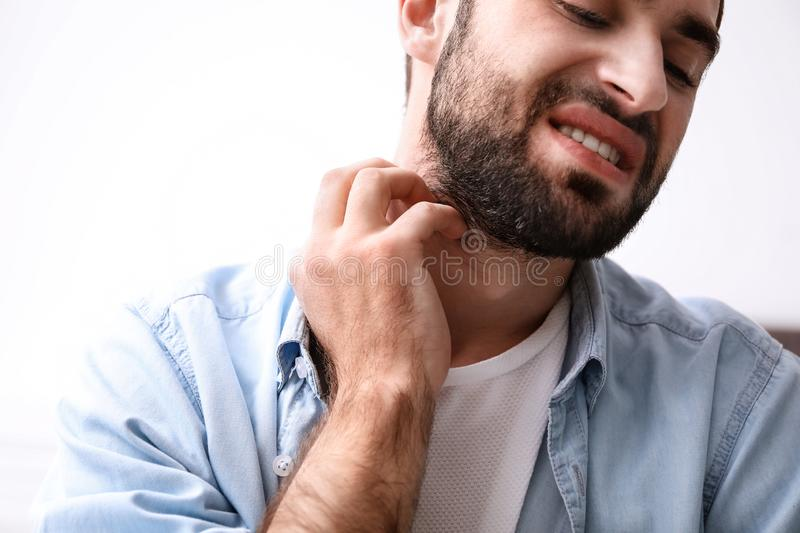 Young man scratching neck. Allergies symptoms. Young man scratching neck indoors, closeup. Allergies symptoms royalty free stock photography