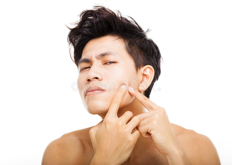 Young man Squeezing pimple. Handsome young man Squeezing pimple royalty free stock image