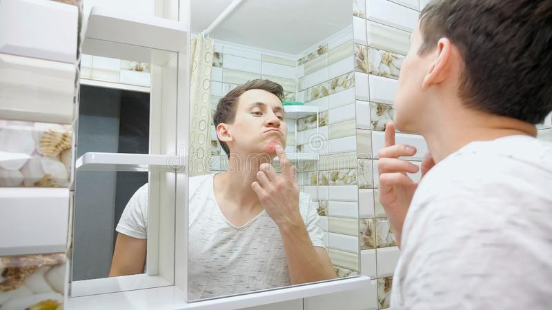 Young man is squeezing a pimple stock image