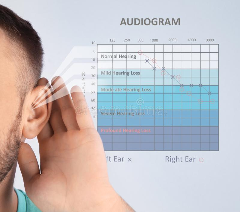 Young man with symptom of hearing loss. And audiogram on color background. Medical test stock image
