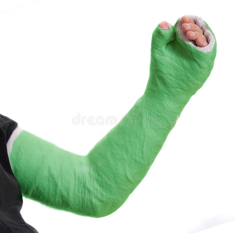 Young man wearing a green long arm plaster fiberglass cast. Close up of a young man`s green long arm plaster / fiberglass cast covering the wrist, arm, and elbow stock photography