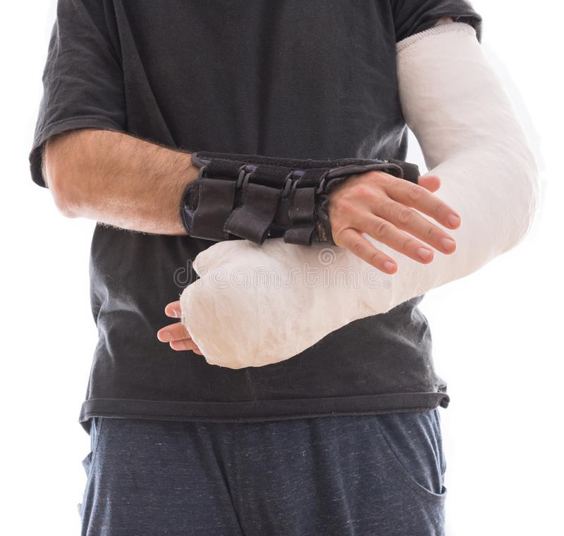 Young man wearing a long arm cast and a splint royalty free stock photo