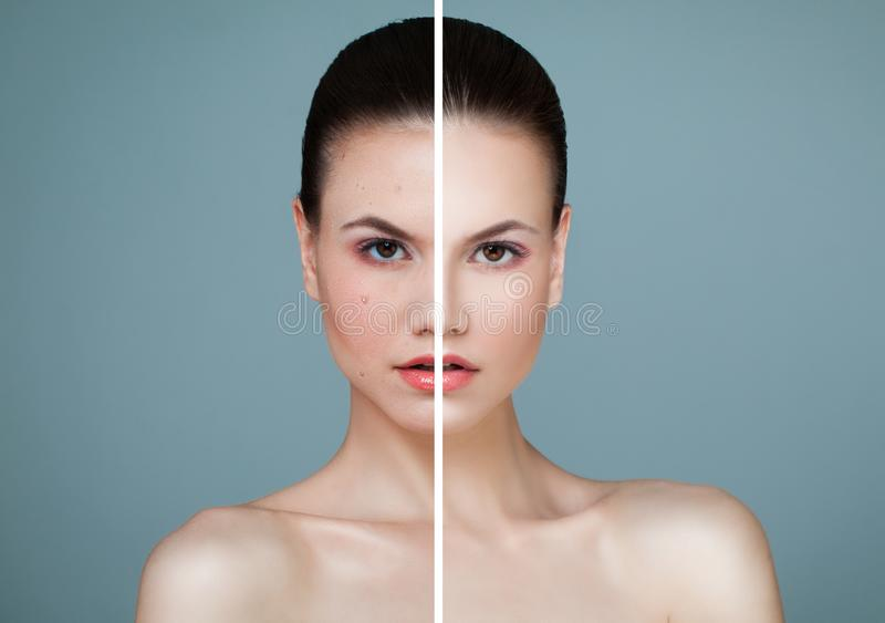 Young Model Woman with Skin Problem and Clear Skin Closeup stock image