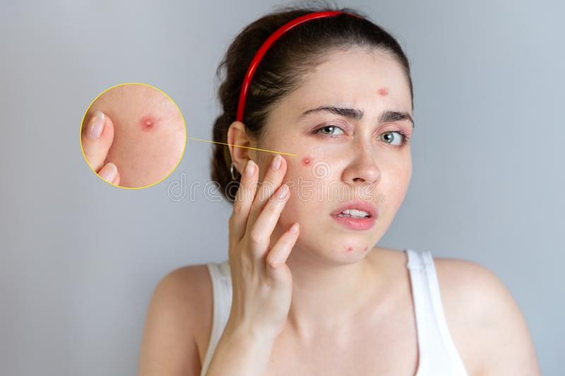A young pretty brunette looks at her face with pimples. The concept of cosmetology and acne control, adolescence. Enlarged image stock photos