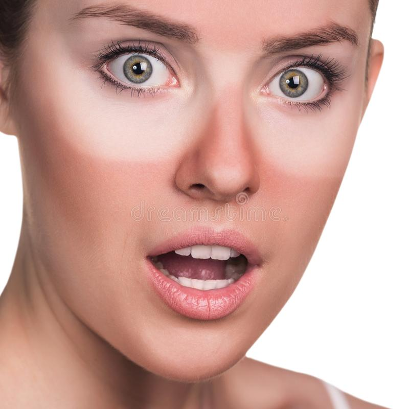 Young surprised woman with sunburned face. royalty free stock photos