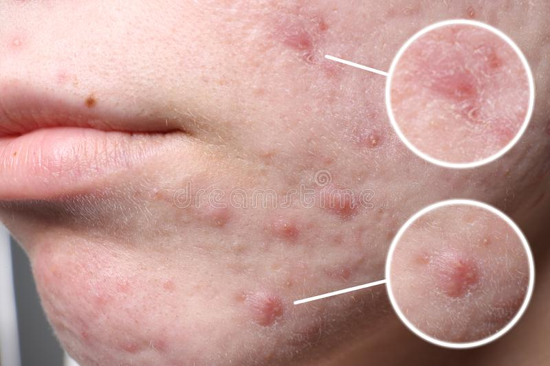 Young woman with acne problem before cosmetic surgery, closeup. stock image