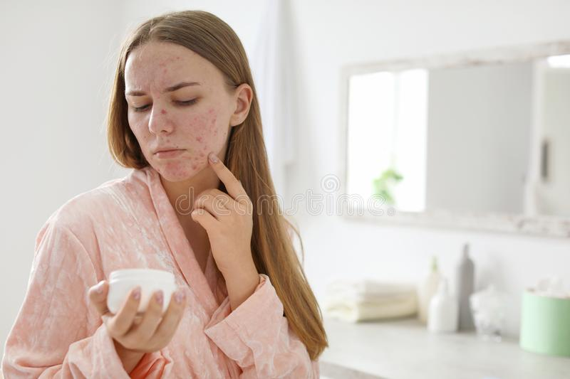 Young woman with acne problem holding jar stock photos