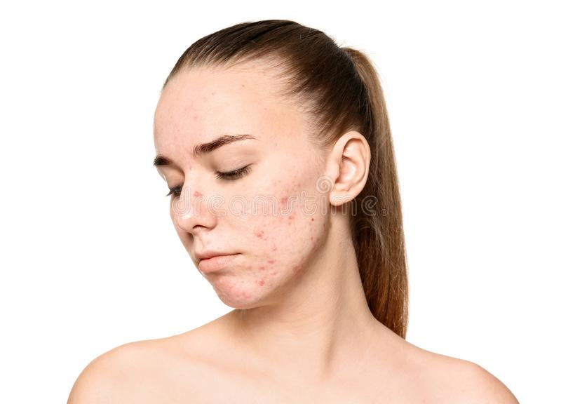 Young woman with acne problem stock photo