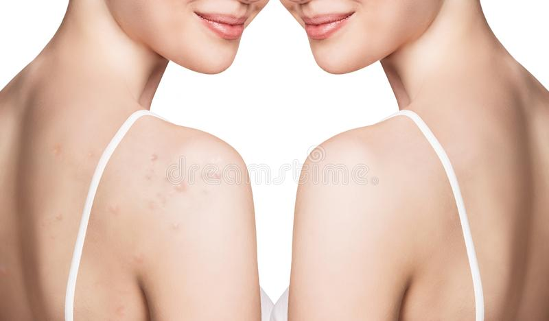 Young woman with acne on shoulders before and after treatment. stock photos