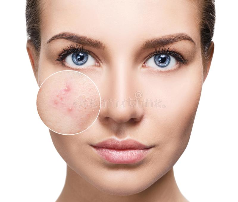 Young woman with acne skin in zoom circle. Young woman with perfet skin and acne skin in zoom circle. Before and after concept stock photo