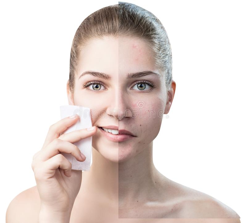 Young woman cleaning her face by napkins. Skincare concept. Maku-up removal napkins royalty free stock photography