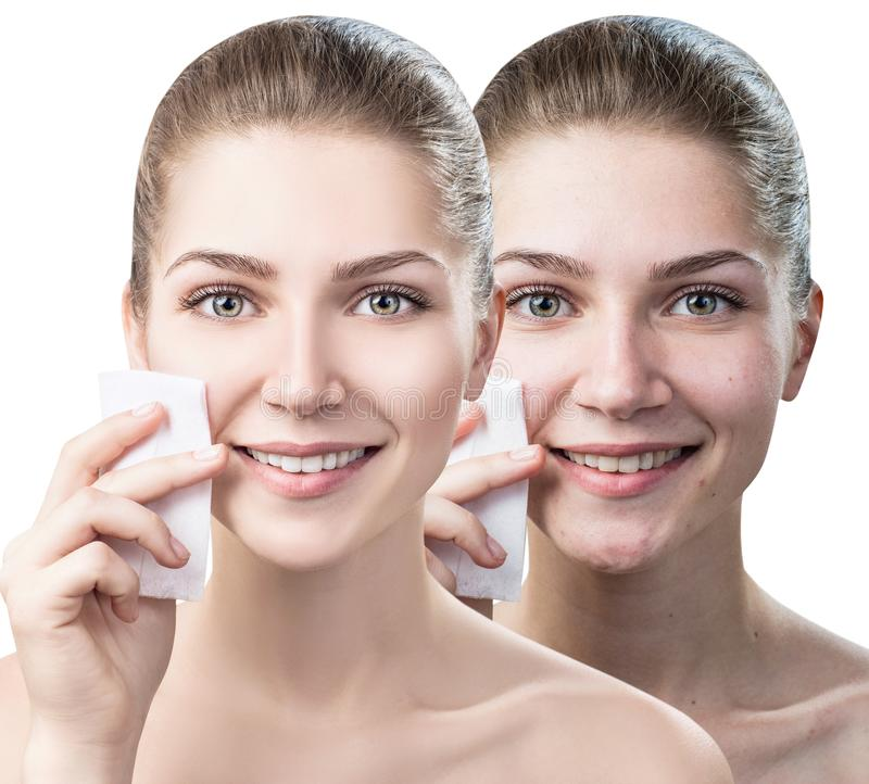 Young woman cleaning her face by napkins. Skincare concept. Maku-up removal napkins stock images