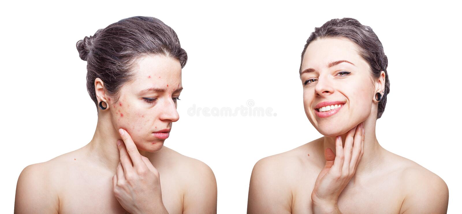 Young woman with cool dark grey hair looking upset about face skin problems and joyful after treatment. royalty free stock photography