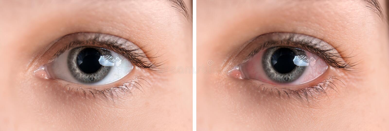 Young woman without and with eye redness, closeup stock image