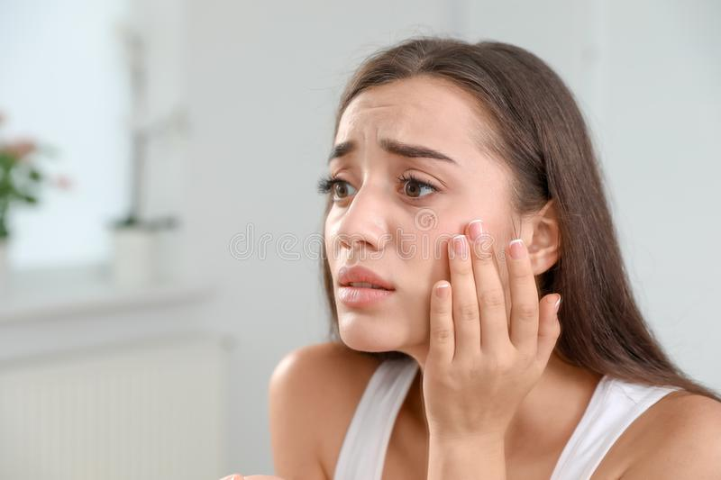 Young woman with eyelash loss problem, indoors. Young woman with eyelash loss problem indoors royalty free stock photography
