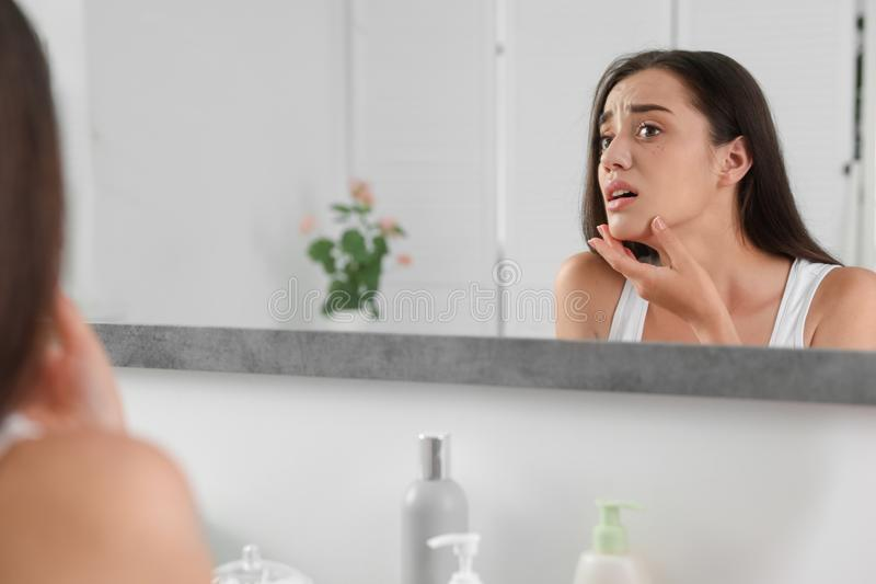 Young woman with eyelash loss problem looking in mirror, indoors. Young woman with eyelash loss problem looking in mirror indoors stock image