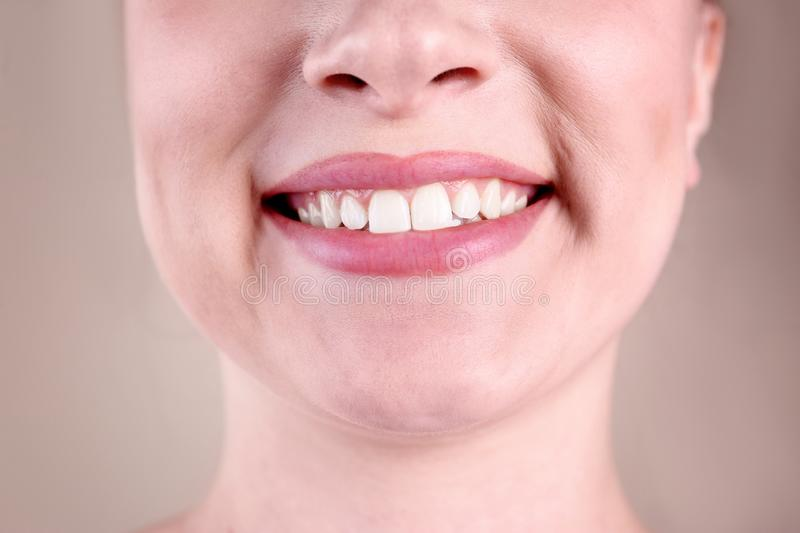 Young woman with healthy teeth smiling on color background. Closeup stock image