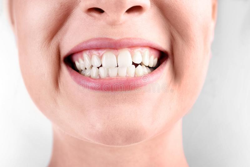 Young woman with healthy teeth smiling on white. Background, closeup royalty free stock images