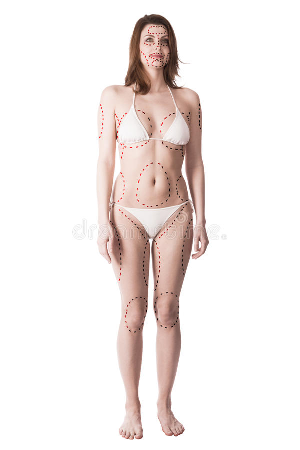 Young woman with plastic surgery marks stock photography